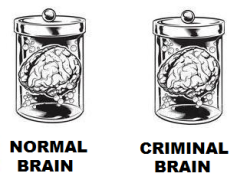 normal brain criminal brain